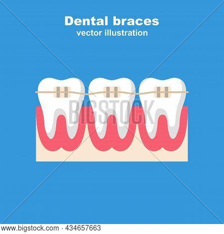 Dental Braces. Teeth With Braces. Leveling Teeth. Orthodontic Treatment. Bite Correction. Vector Ill