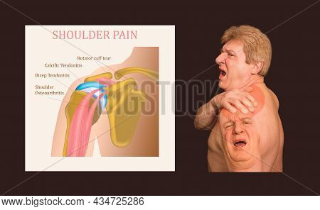 Shoulder Joint Structure And Shoulder Tendonitis. The Collage Of Senior Man With Shoulder Pain Over