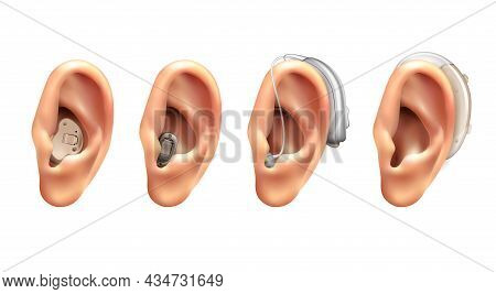 Hearing Aid Ear Realistic Set Of Four Isolated Images With Human Ears With Hanging Electronic Applia