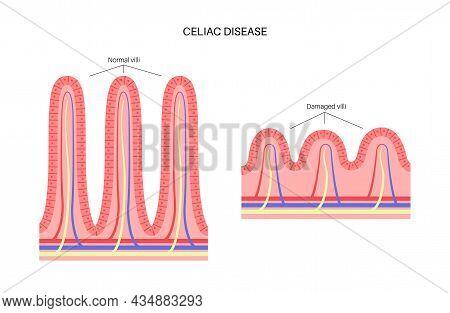 Celiac Disease. Damaged And Normal Intestinal Villi In Surface Area Of Intestinal Walls. Small Intes