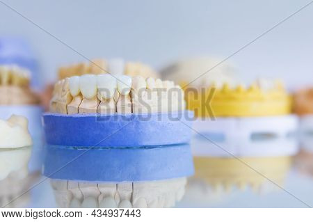 The Layout Of The Jaw Of A Person With Dental Implants. Manufacturing And Prosthetics Of Teeth. Dent