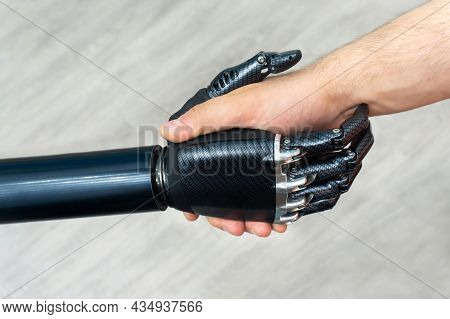 Bionic Arm. Modern Prosthetic Limbs. High Strength Carbon Fiber Products.
