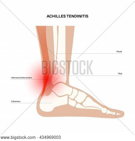 Achilles Tendinitis Anatomical Poster. Ankle Injury, Ligament Sprain And Tear Problems. Pain In The