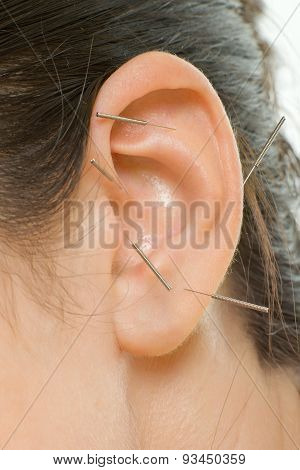acupuncture therapy on auricle vertical very close up photo poster