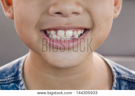 Child tooth decay. smiling children  have tooth decay.