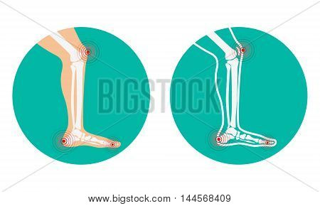 Pain in legs. knee pain heel pain. Vector illustration.
