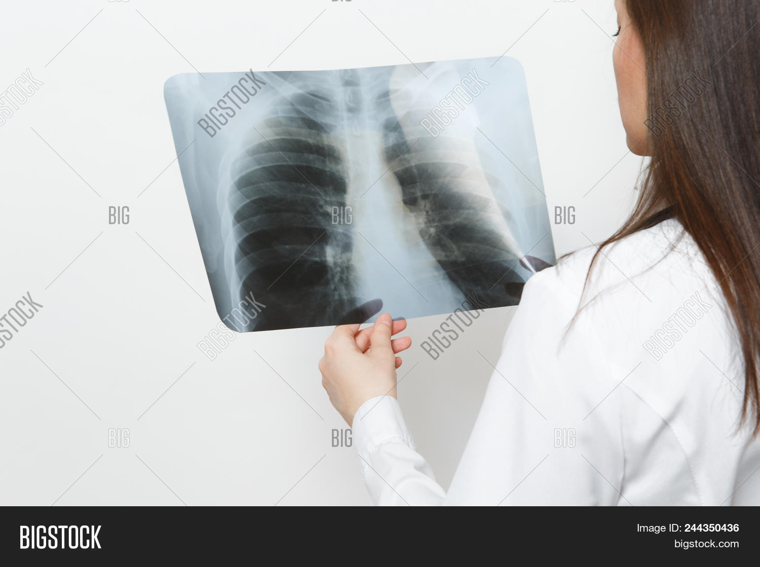 close up doctor woman with x-ray of lungs, fluorography, roentgen isolated  on