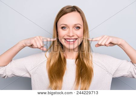 Portrait Of Joyful Satisfied Girl Gesturing Her Beaming White Healthy Teeth With Two Forefingers Loo