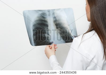 Close Up Doctor Woman With X-ray Of Lungs, Fluorography, Roentgen Isolated On White Background. Fema