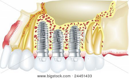 Denatal Implants