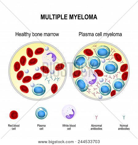Multiple myeloma is a cancer of the bone marrow. healthy plasma cells in the bone marrow mutate and multiply uncontrollably. Myeloma cells suppress the growth of healthy cells that make blood. malignant plasma cells produce a paraprotein (inactive antibod poster