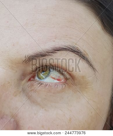 Woman Red Eyes, Conjunctivitis Capillary, Ugly, Look, Vision