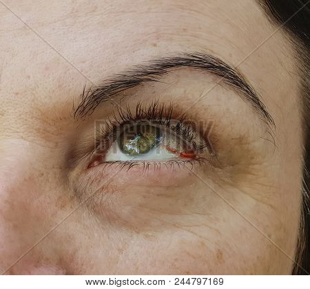 woman red eyes, conjunctivitis capillary, ugly, look, vision poster