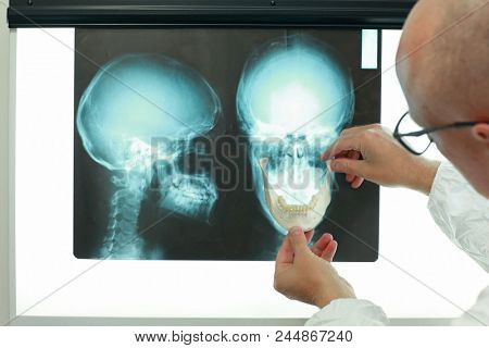 Professional with model of lower jaw watching images of skull at x-ray film viewer. Diagnosis,treatment planning