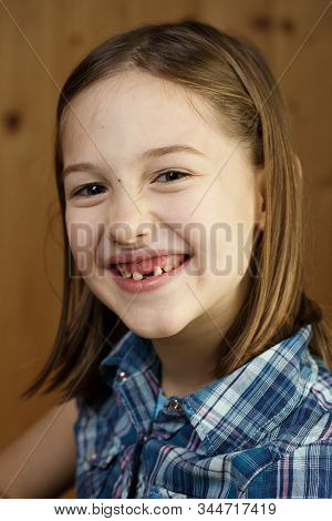 Little Girl  Smiling, Showing Her Loose And Missing Milk Teeth. Playful, Cheerful Childhood, Tooth F