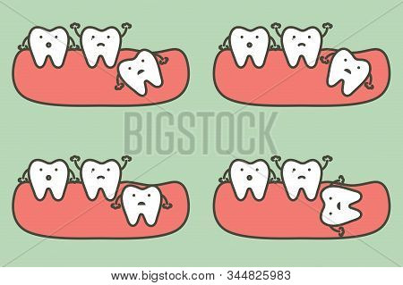 Type Of Wisdom Tooth Affect To Other Teeth - Dental Cartoon Vector Flat Style Cute Character For Des