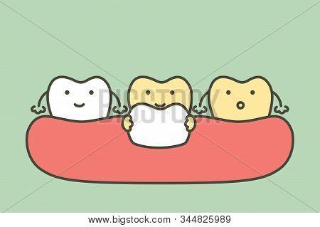Dental Veneers Installation Procedure For Tooth Whiten - Teeth Cartoon Vector Flat Style Cute Charac