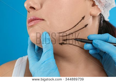 Doctor Drawing Marks On Woman's Face For Cosmetic Surgery Operation Against Blue Background, Closeup