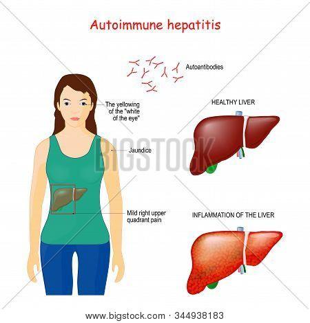Autoimmune Hepatitis. Autoimmune Disease When Immune System Attacks Liver Cells Causing The Liver To