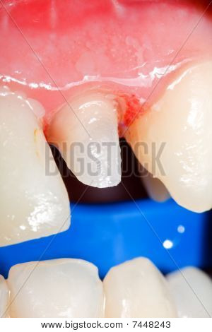 Tooth Stub For Crown