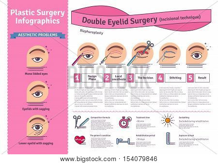 Vector Illustrated set with double eyelid surgery. Infographics with icons of plastic surgery procedures.