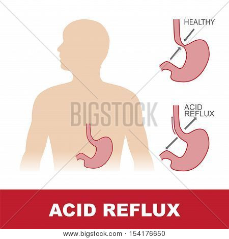 vector illustration of comparison of healty stomach and with acid reflux