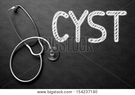 Cyst Handwritten Medical Concept on Chalkboard. Top View Composition with Black Chalkboard and White Stethoscope on it. Black Chalkboard with Cyst - Medical Concept. 3D Rendering.