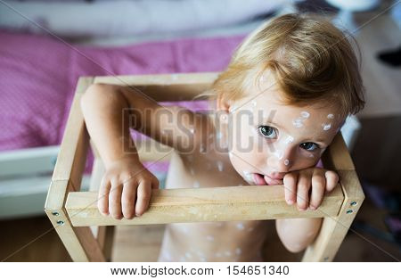 Little two year old girl at home sick with chickenpox, sitting in wooden chair. White antiseptic cream applied to the rash.