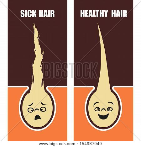 Medical Educational poster sick and healthy hair. Vector illustration.