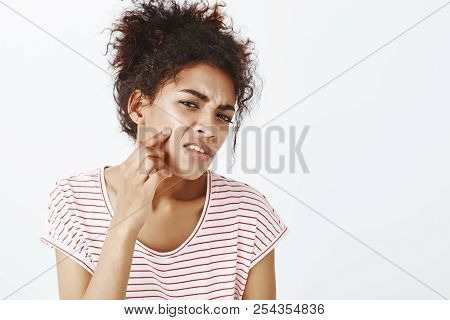 Displeased Unhappy Dark-skinned Woman With Combed Curly Hair, Frowning And Pointing At Acne On Cheek