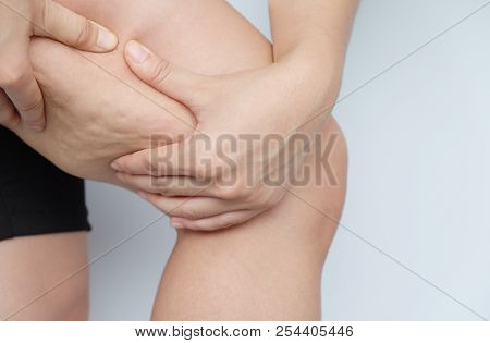 Female Legs Thighs With Cellulite. Skin Problem, Body Care, Overweight And Dieting Concept, Diabetic