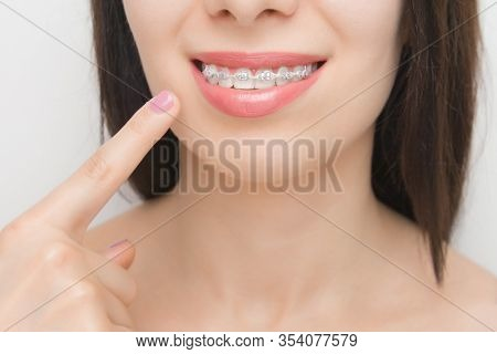 Dental Braces In Happy Womans Mouths Who Shows By Finger On Brackets On The Teeth After Whitening. S