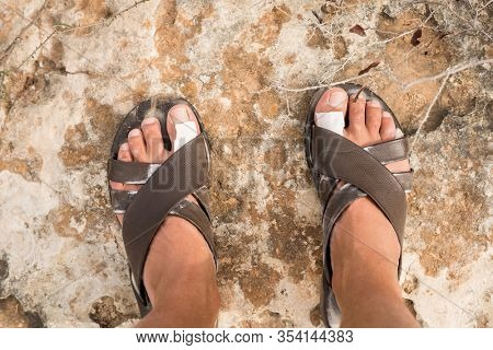 White Adhesive Bandage on Men's Leg Skin After a Long Walk in Sandals. First Aid. Footwear Wrong Size. Sandals on Stone Ground.
