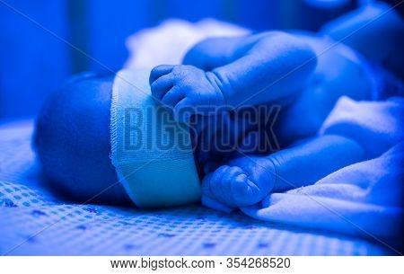 Newborn Having A Treatment For Jaundice Under Ultraviolet Light, Baby Has High Level Of Bilirubin, L
