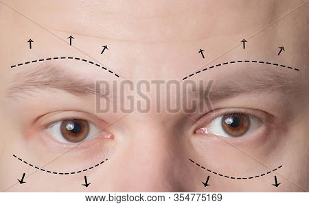 Plastic Surgery Of Eyebrows In Men, Lower And Upper Eyelids. The Concept Of The Modern Blepharoplast