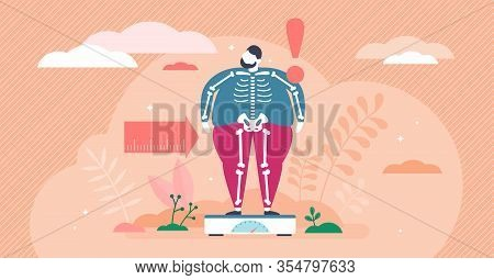 Overweight Concept, Flat Tiny Person Vector Illustration. Weight Loss Creative Graphic Art With Very