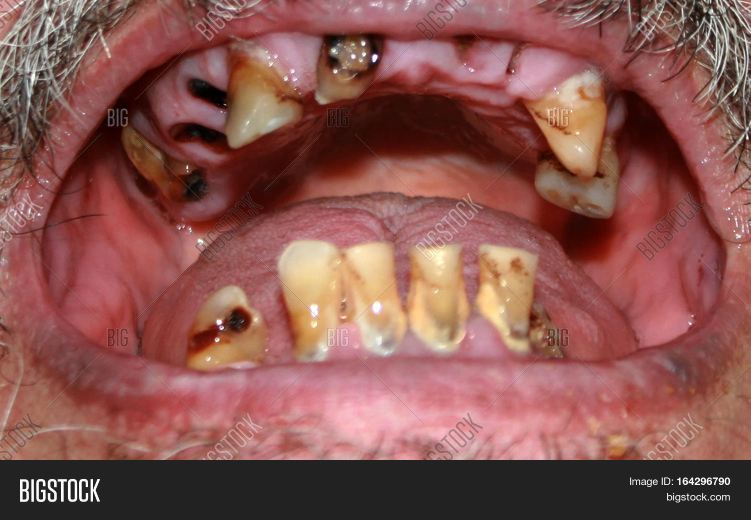 Rotten Bad Teeth Image Photo Free Trial Bigstock