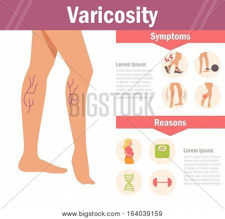 Varicosity. Vector. Cartoon. Isolated. Flat Illustration for websites brochures magazines Medicine