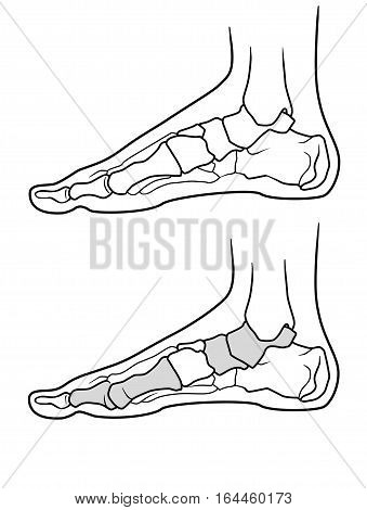 The structure of the legs with flat feet and normally feet on a white background