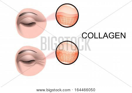 illustration of collagen damage. for advertising and other medical publications