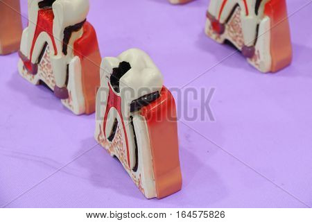 Dental Model of Teeth on a table