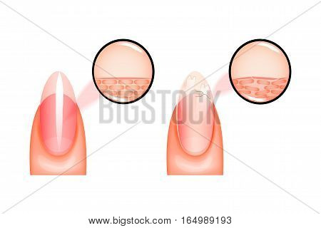 vector illustration of nail healthy and sick under magnification. for medical and promotional publications