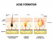 Three stages of the acne formation in the human skin. The sebum in the clogged pore promotes the growth of a bacteria Propionibacterium Acnes. This leads to the redness and inflammation that associated with pimples. For clinics and Schools poster