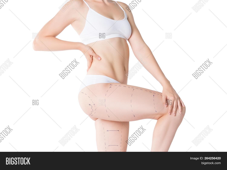 Liposuction, Fat Image & Photo (Free Trial)   Bigstock