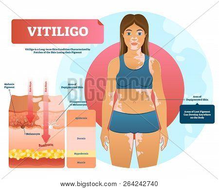 Vitiligo Vector Illustration. White Pigment Autoimmune Disease With Pigment Loss. Skin Depigmentatio