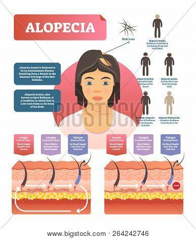 Alopecia - Hair Loss Autoimmune Disease Medical Vector Diagram Illustration With Variations. Example