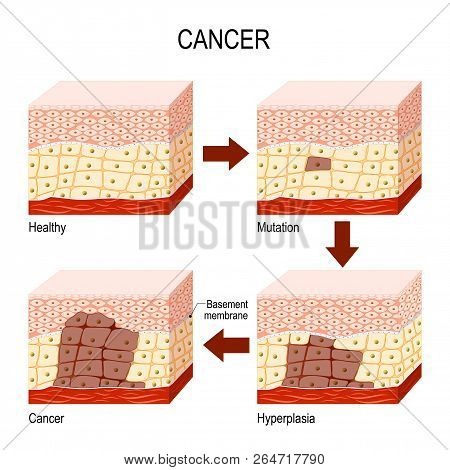 Developing Cancer. From Normal Cells To Mutation, Hyperplasia, And Malignant Tumor. Neoplasia. Vecto