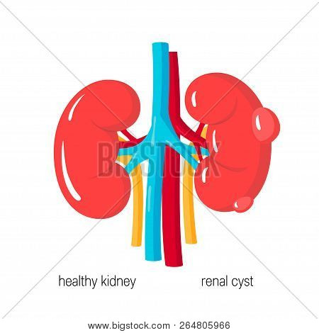 Polycystic Kidney Disease Concept. Kidney With Cyst And Healthy One. Vector Illustration In Flat Sty