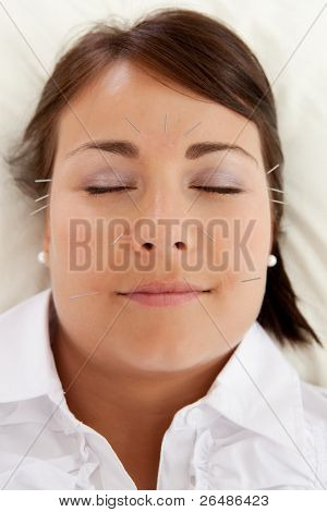 Acupuncture patient undergoing a facial beauty treatment