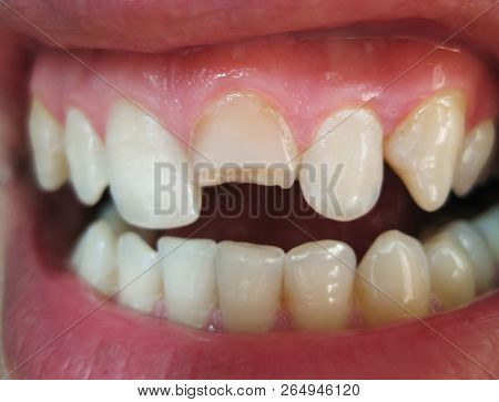 Broken Tooth. Broken Upper Incisor In A Man Mouth. Man Shows Oral Cavity To The Dentist. Treatment O